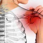نمونه بالینی درمان درد شانه، دست و زانو با لیزرآکوپانکچر
