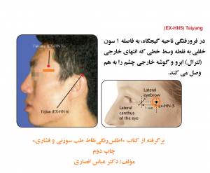 اطلس رنگی نقاط طب سوزنی و فشاری، نقطه کاهش درد و اضطراب