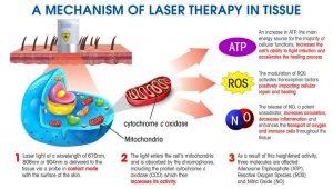 لیزر درمانی و طب سوزنی